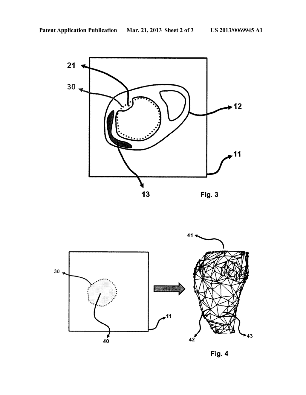 METHOD FOR DISPLAYING THE INFORMATION CONTAINED IN THREE-DIMENSIONAL     IMAGES OF THE HEART - diagram, schematic, and image 03