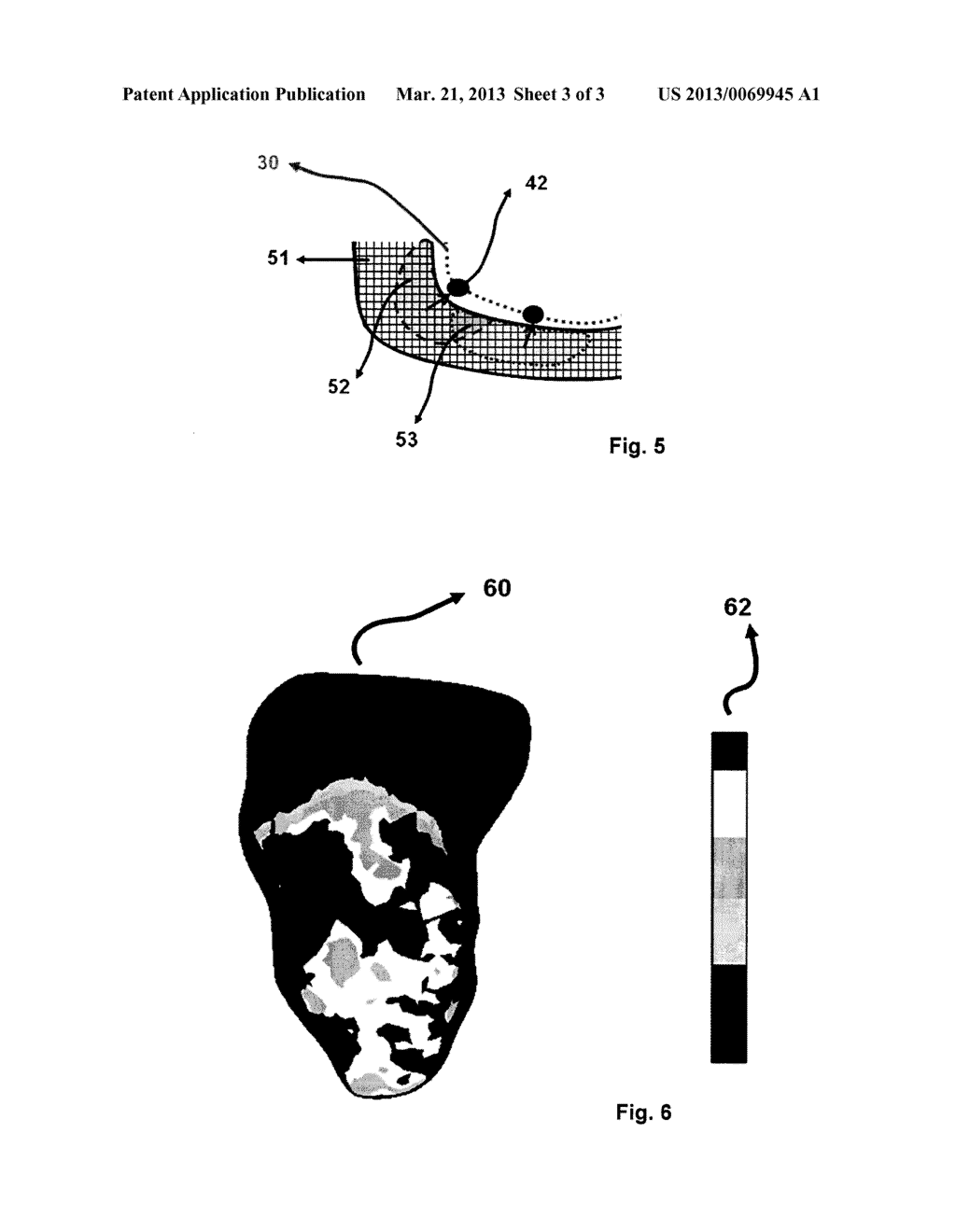 METHOD FOR DISPLAYING THE INFORMATION CONTAINED IN THREE-DIMENSIONAL     IMAGES OF THE HEART - diagram, schematic, and image 04