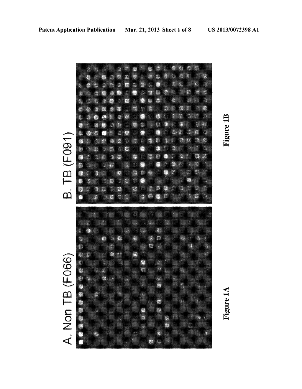 Compositions And Methods For Immunodominant Antigens of Mycobacterium     Tuberculosis - diagram, schematic, and image 02