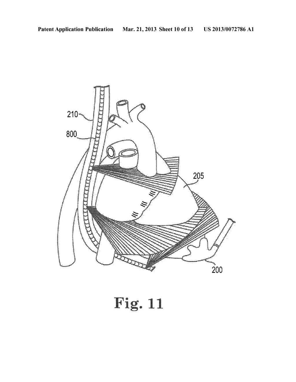 IMAGE-GUIDED HEART VALVE PLACEMENT OR REPAIR - diagram, schematic, and image 11