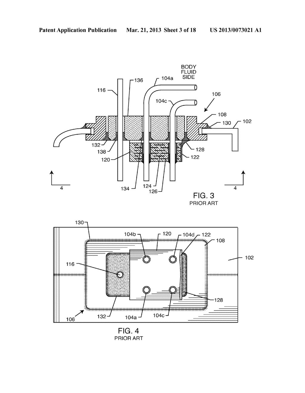 Band Stop Filter Employing A Capacitor And An Inductor Tank Circuit To Enhance Mri Compatibility Of Active Medical Devices Diagram Schematic Image