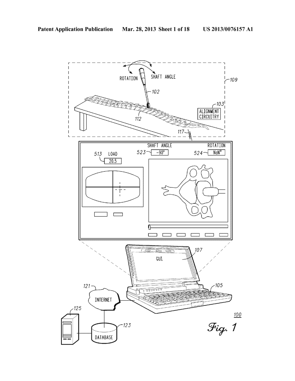 DEVICE AND METHOD FOR ENABLING AN ORTHOPEDIC TOOL FOR PARAMETER     MEASUREMENT - diagram, schematic, and image 02