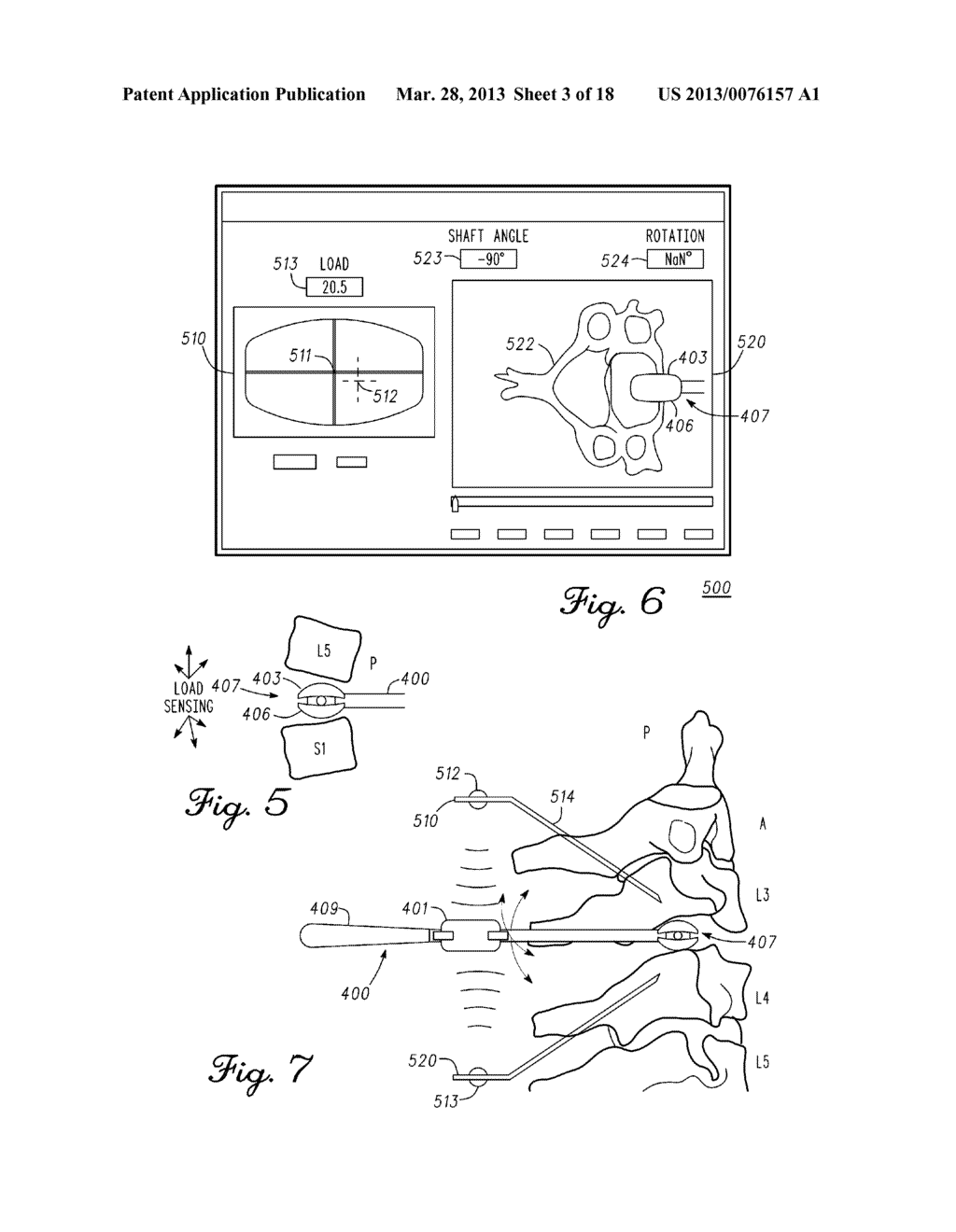 DEVICE AND METHOD FOR ENABLING AN ORTHOPEDIC TOOL FOR PARAMETER     MEASUREMENT - diagram, schematic, and image 04