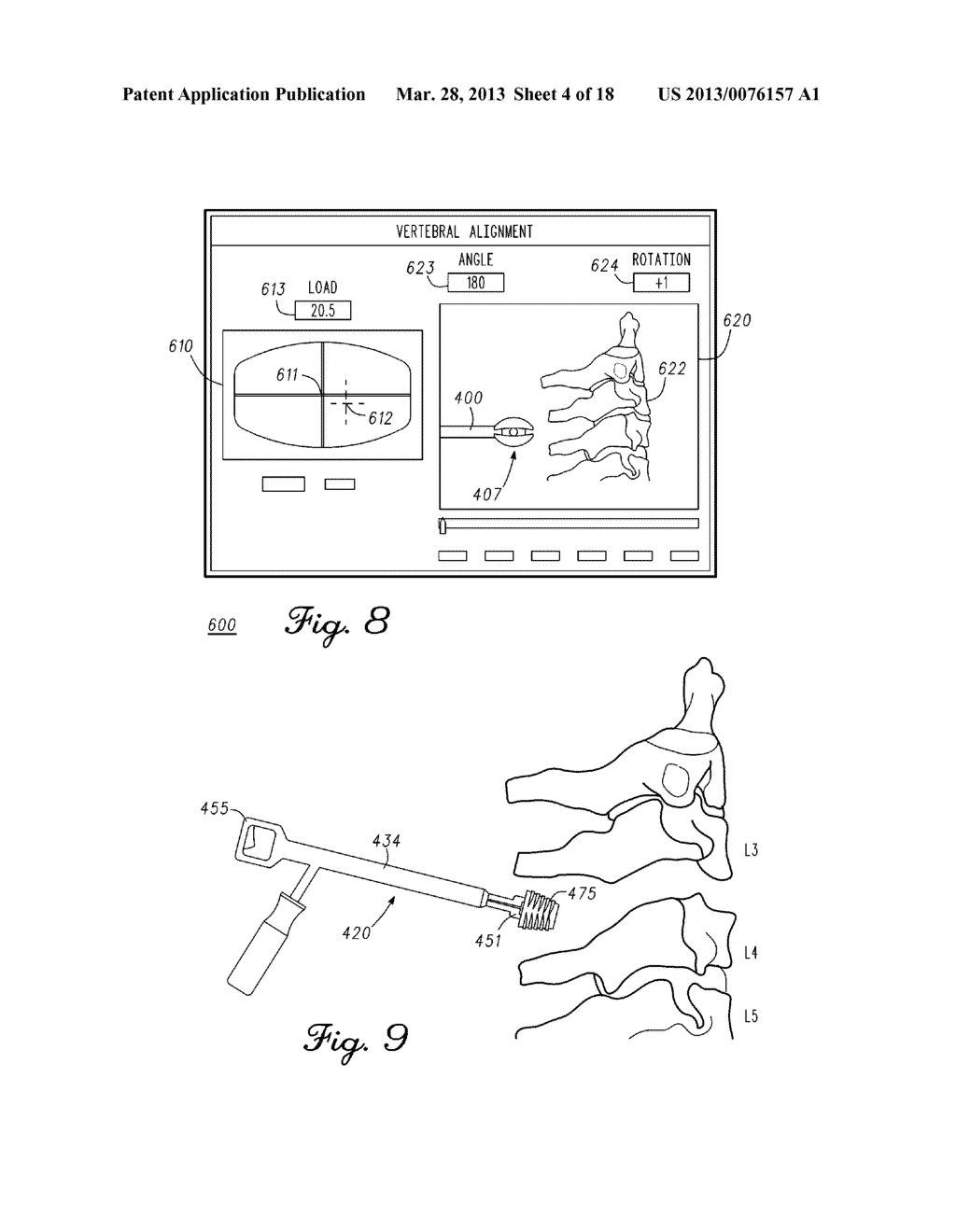 DEVICE AND METHOD FOR ENABLING AN ORTHOPEDIC TOOL FOR PARAMETER     MEASUREMENT - diagram, schematic, and image 05