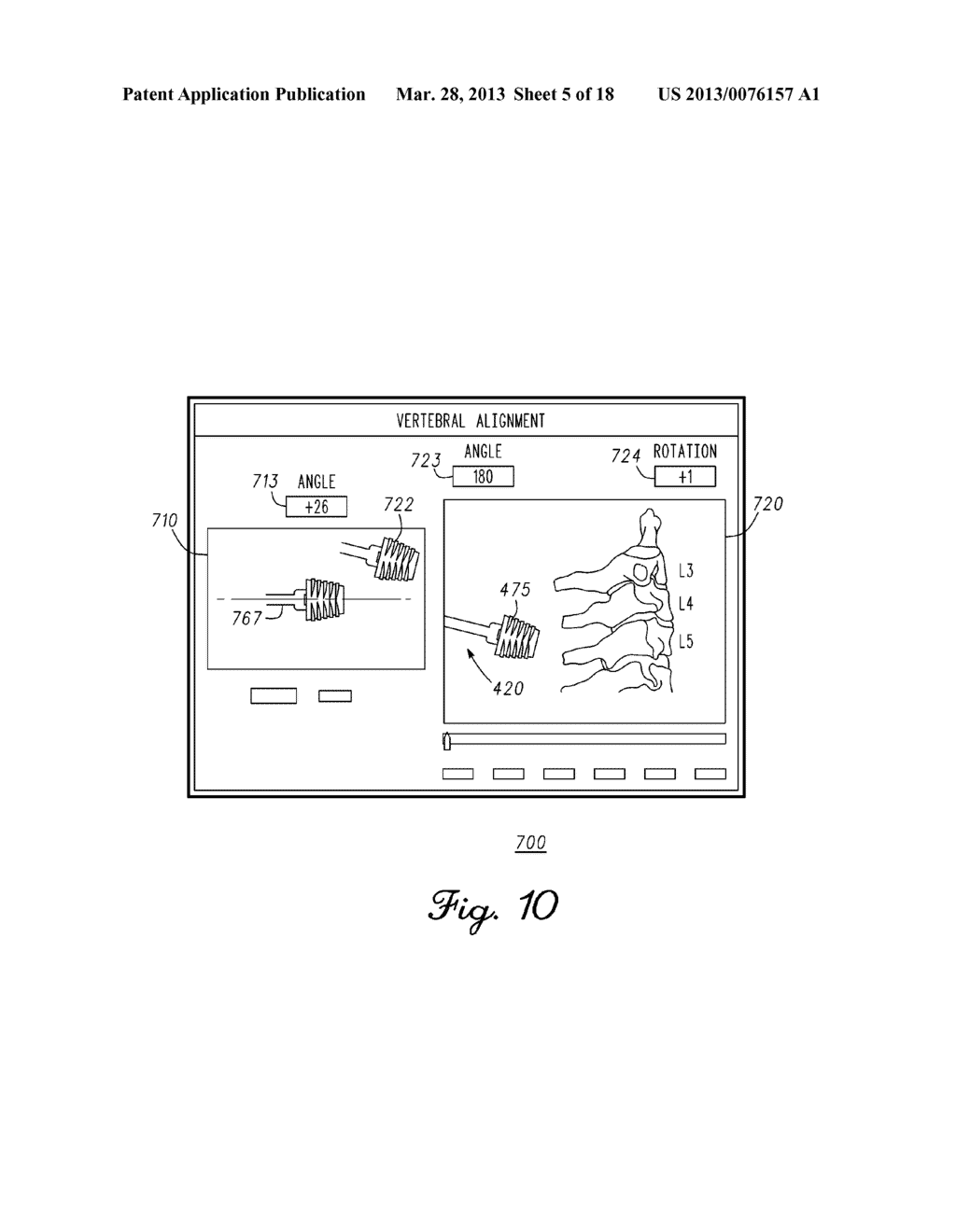 DEVICE AND METHOD FOR ENABLING AN ORTHOPEDIC TOOL FOR PARAMETER     MEASUREMENT - diagram, schematic, and image 06