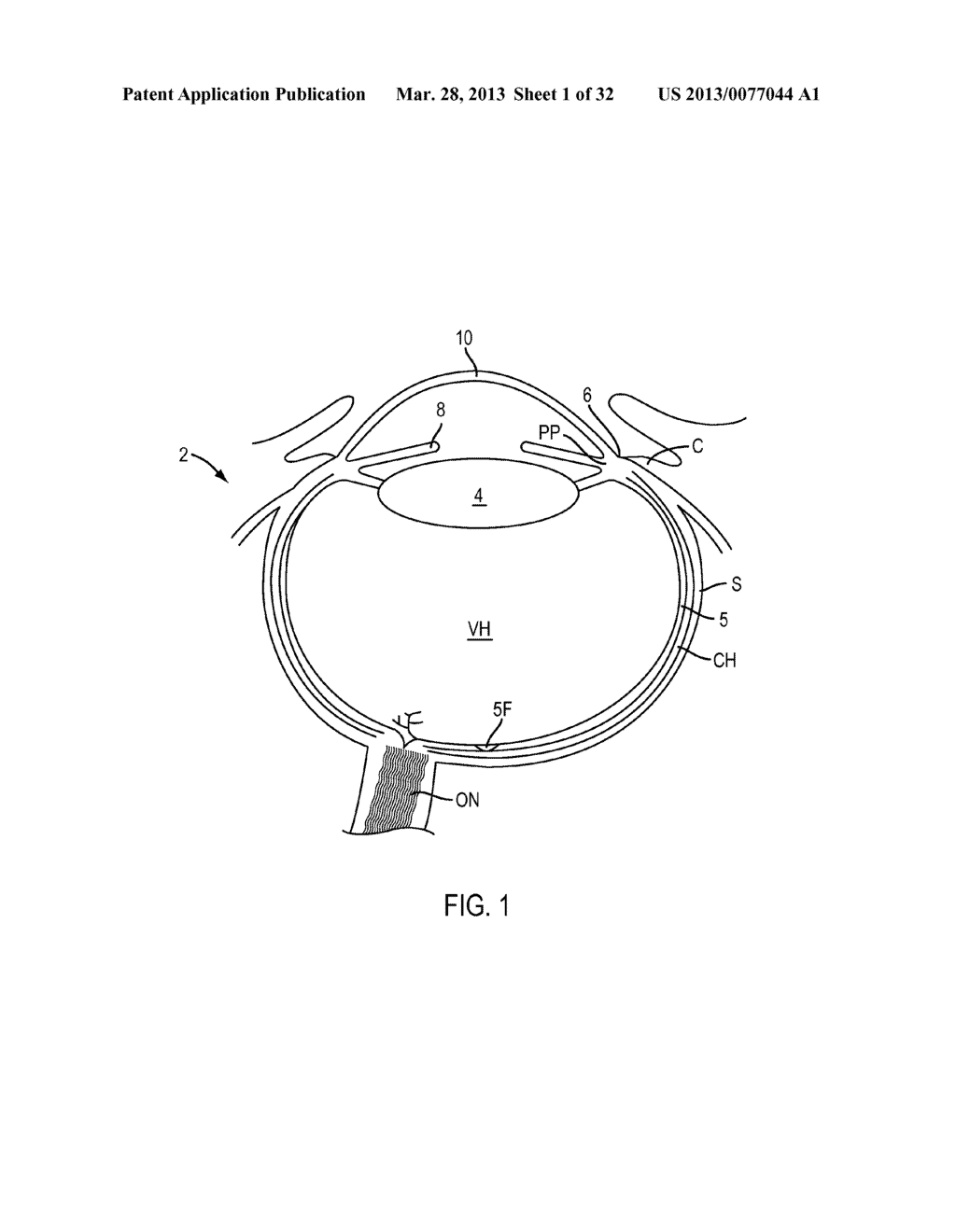 Eye Covering and Refractive Correction Methods and Apparatus Having     Improved Tear Flow, Comfort, and/or Applicability - diagram, schematic, and image 02