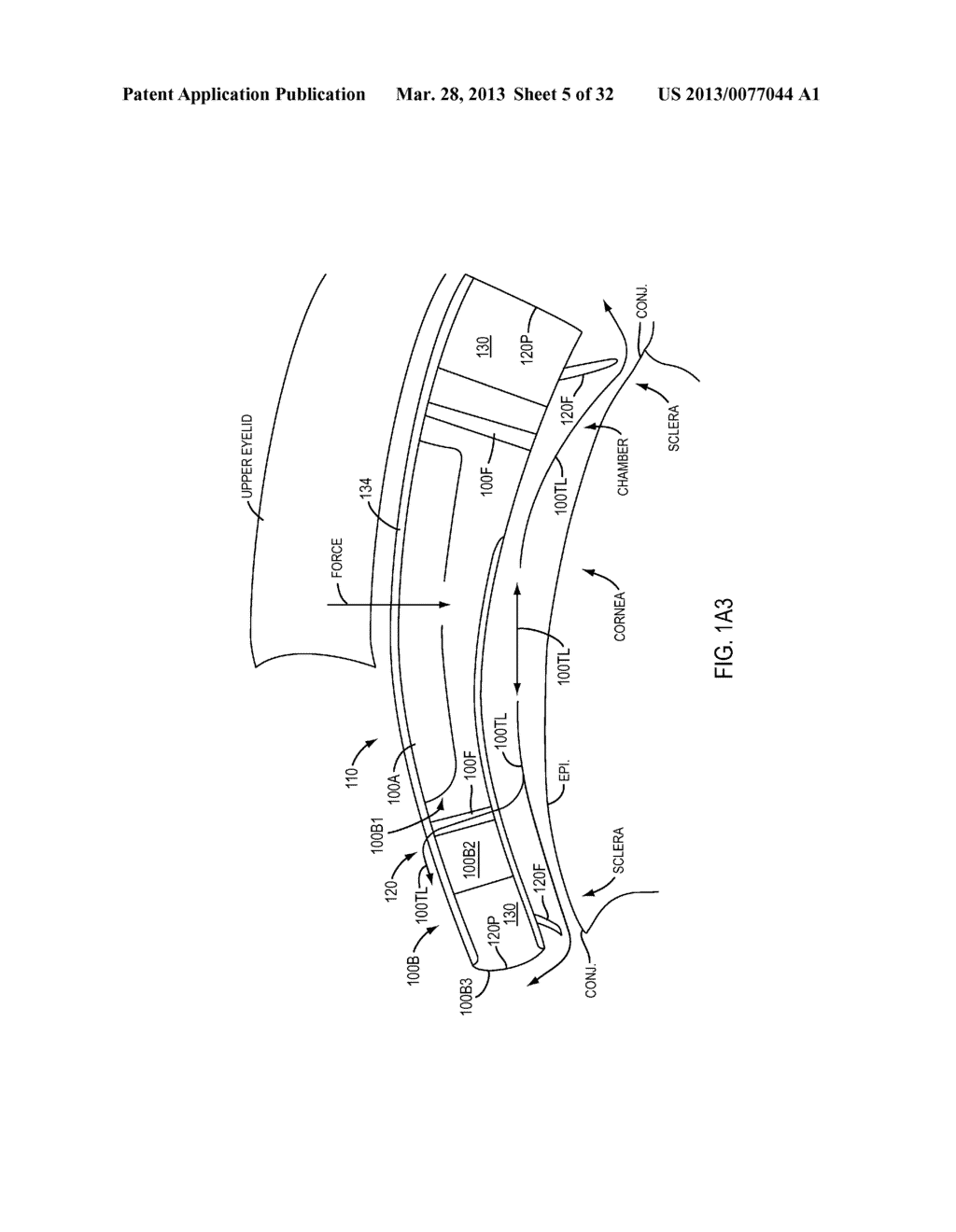 Eye Covering and Refractive Correction Methods and Apparatus Having     Improved Tear Flow, Comfort, and/or Applicability - diagram, schematic, and image 06