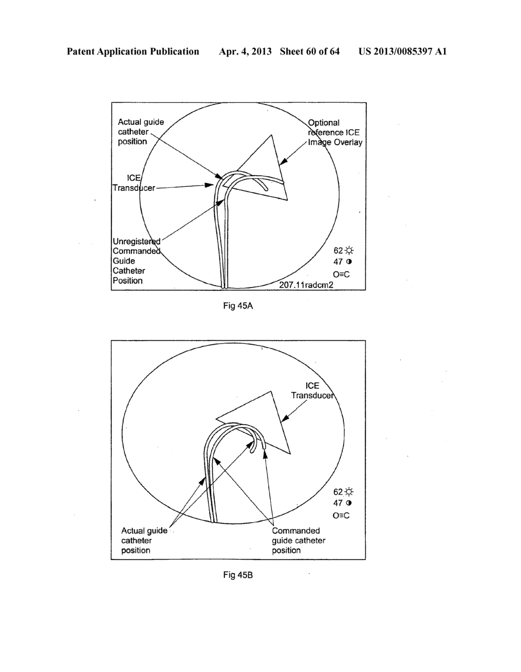 OPTICAL FIBER INSTRUMENT SYSTEM AND METHOD WITH MOTION-BASED ADJUSTMENT - diagram, schematic, and image 61