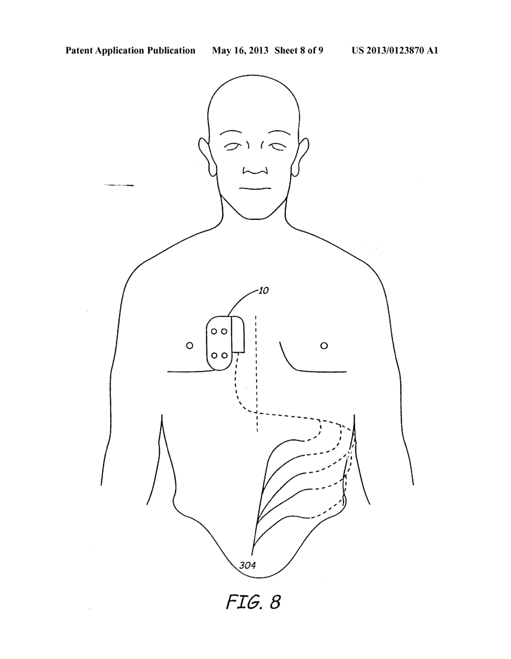 APPARATUS FOR DETECTING AND TREATING VENTRICULAR ARRHYTHMIA - diagram, schematic, and image 09
