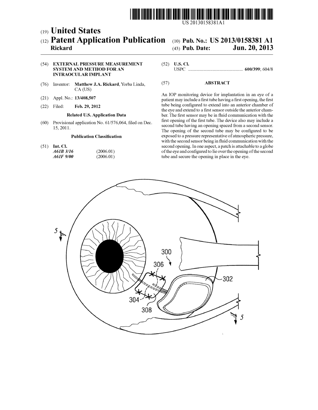 External Pressure Measurement System and Method for an Intraocular Implant - diagram, schematic, and image 01