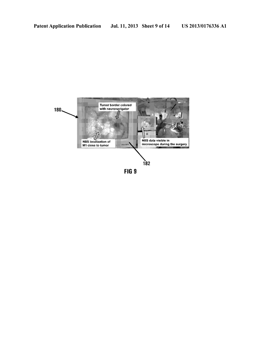 METHOD OF AND SYSTEM FOR OVERLAYING NBS FUNCTIONAL DATA ON A LIVE IMAGE OF     A BRAIN - diagram, schematic, and image 10