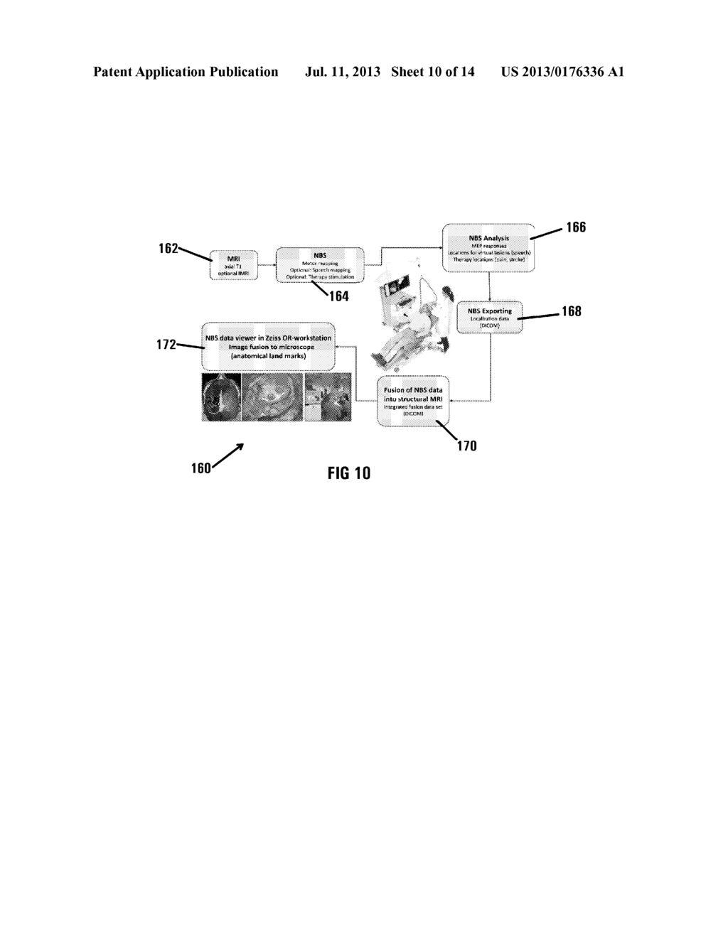 METHOD OF AND SYSTEM FOR OVERLAYING NBS FUNCTIONAL DATA ON A LIVE IMAGE OF     A BRAIN - diagram, schematic, and image 11