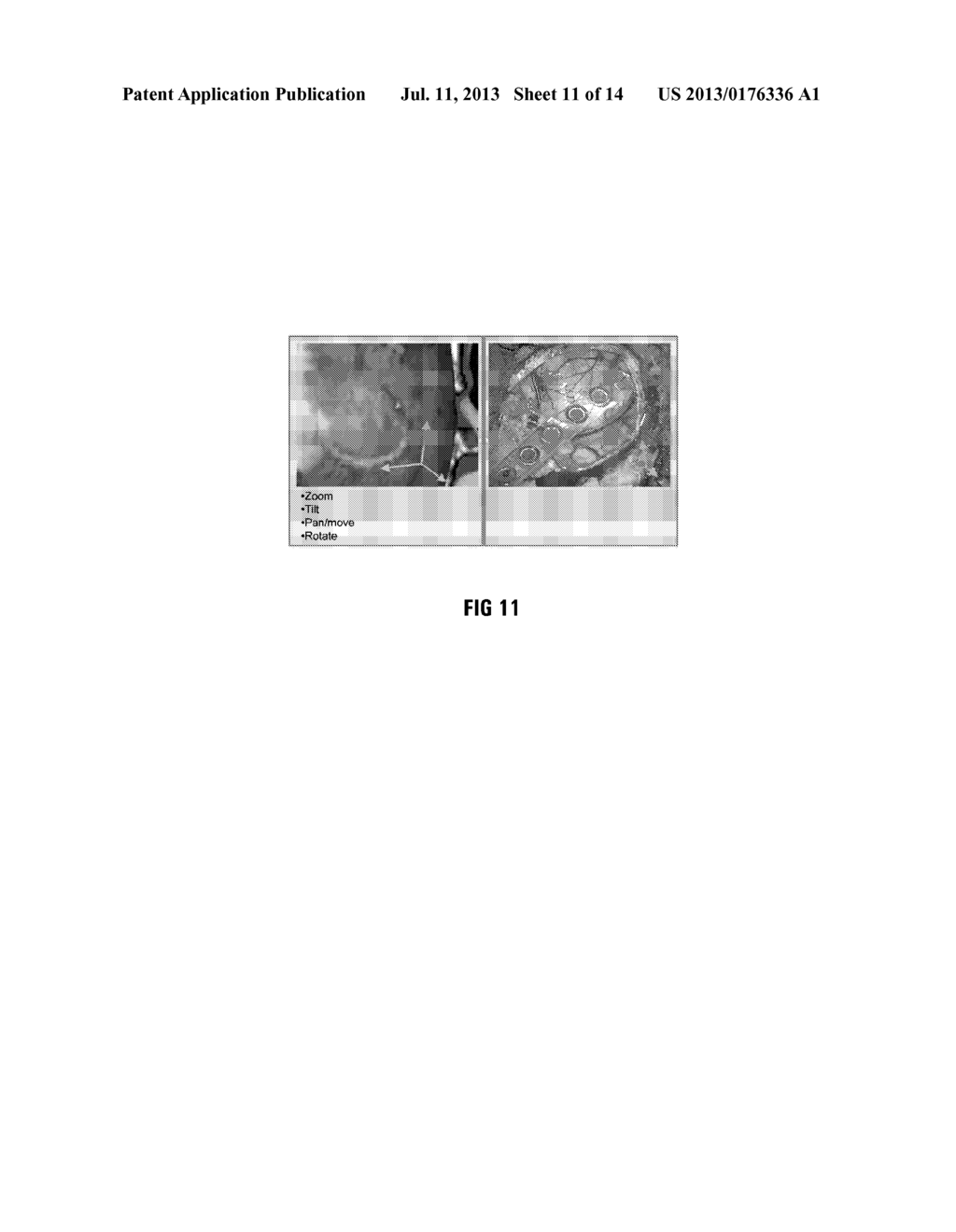 METHOD OF AND SYSTEM FOR OVERLAYING NBS FUNCTIONAL DATA ON A LIVE IMAGE OF     A BRAIN - diagram, schematic, and image 12