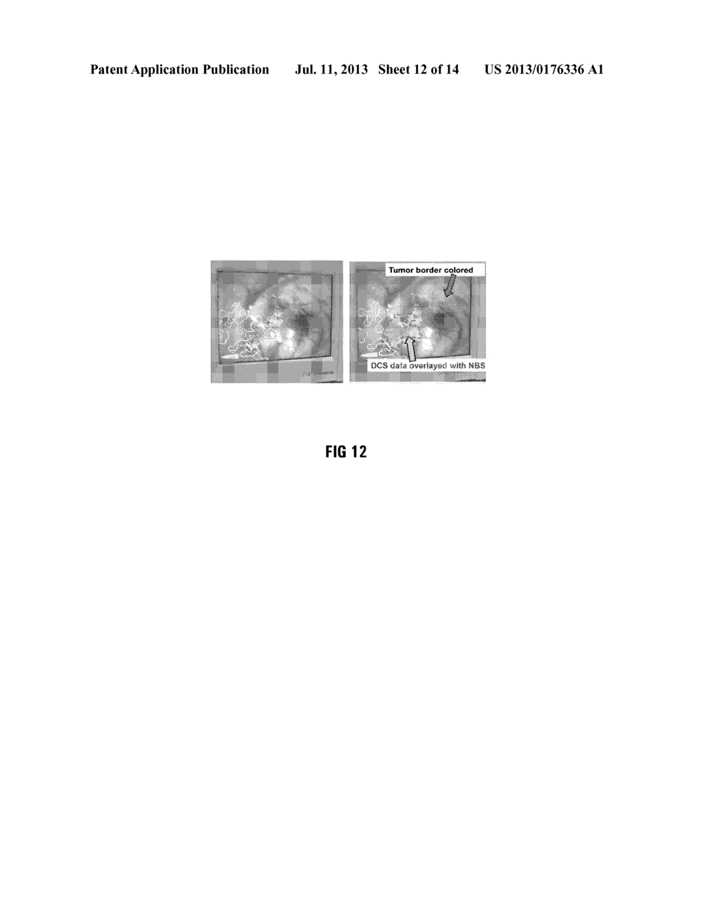 METHOD OF AND SYSTEM FOR OVERLAYING NBS FUNCTIONAL DATA ON A LIVE IMAGE OF     A BRAIN - diagram, schematic, and image 13