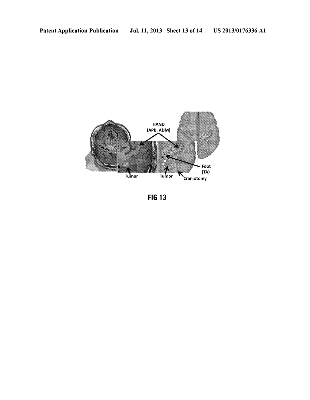 METHOD OF AND SYSTEM FOR OVERLAYING NBS FUNCTIONAL DATA ON A LIVE IMAGE OF     A BRAIN - diagram, schematic, and image 14