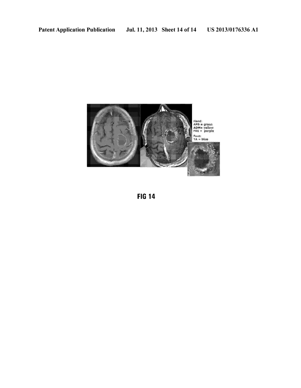 METHOD OF AND SYSTEM FOR OVERLAYING NBS FUNCTIONAL DATA ON A LIVE IMAGE OF     A BRAIN - diagram, schematic, and image 15