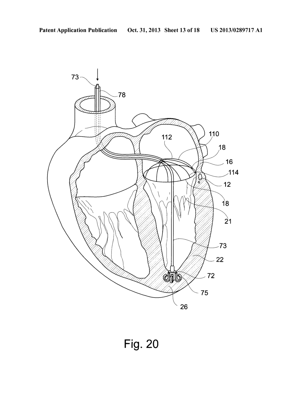 Device And A Method For Augmenting Heart Function Diagram