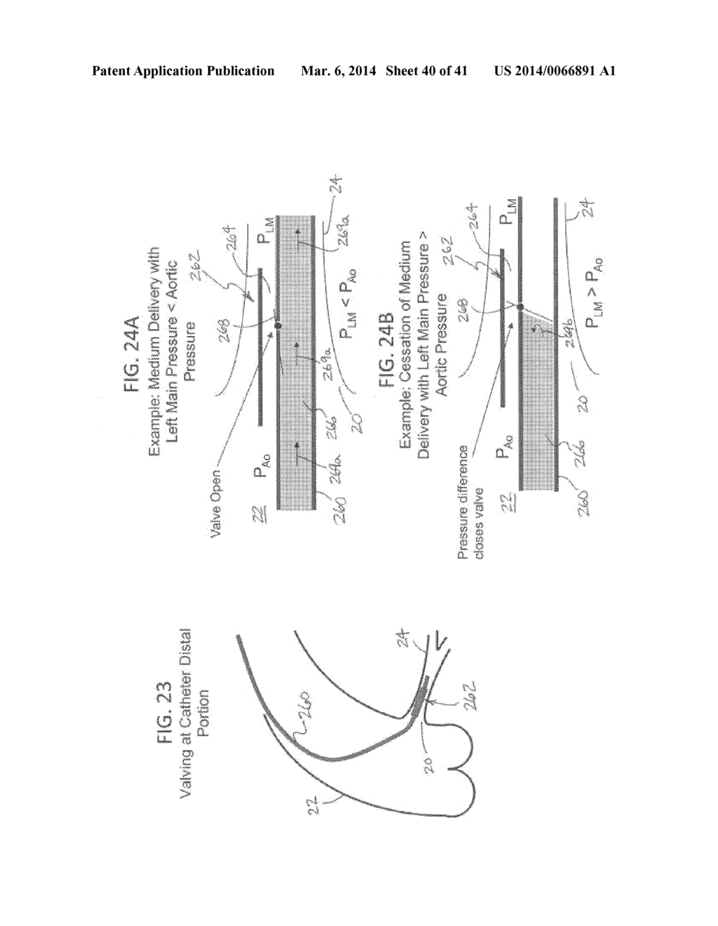 Devices and Methods for Modulating Medium Delivery - diagram, schematic, and image 41