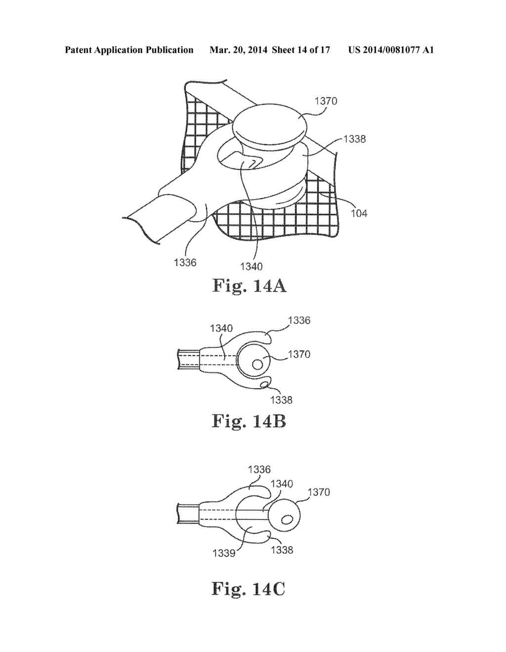 CARDIAC SUPPORT DEVICE DELIVERY TOOL WITH RELEASE MECHANISM - diagram, schematic, and image 15