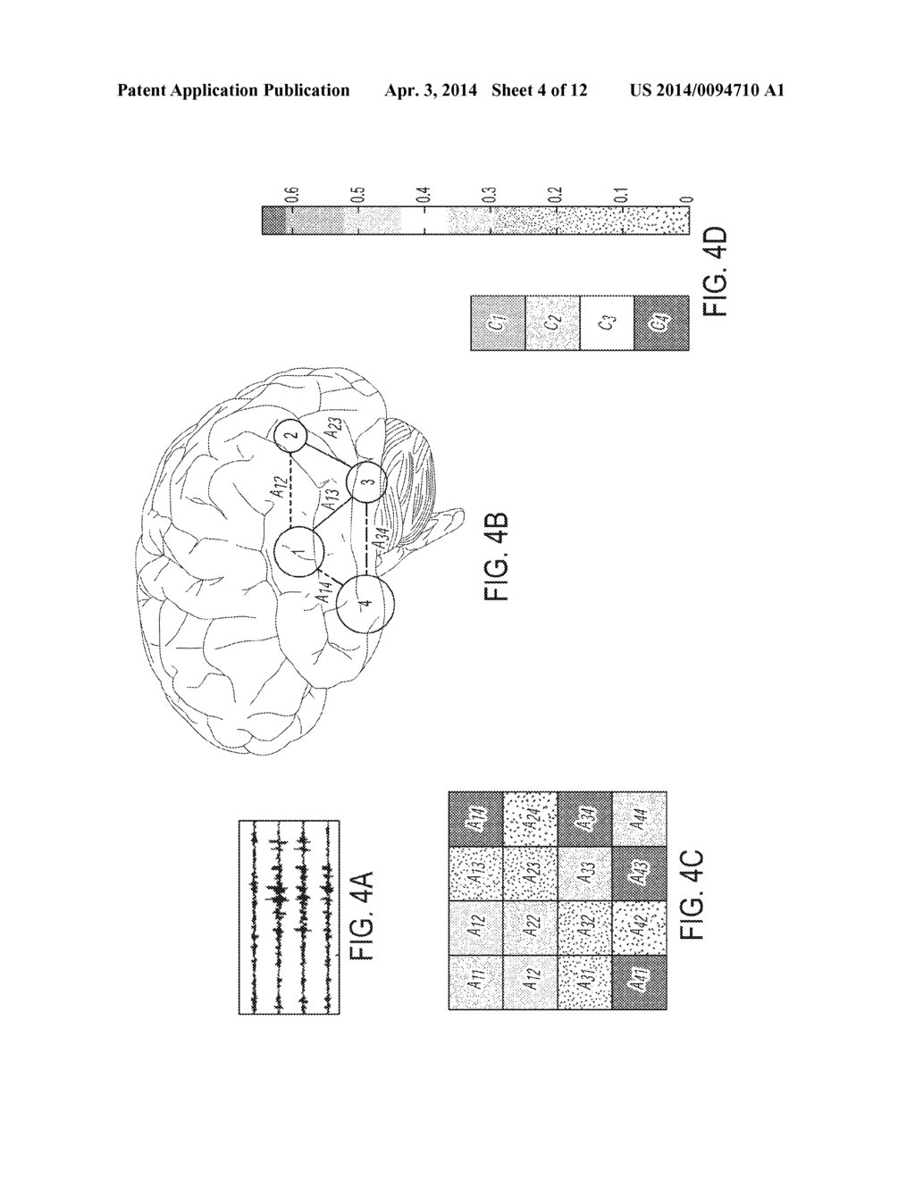 COMPUTATONAL TOOL FOR PRE-SURGICAL EVALUATION OF PATIENTS WITH MEDICALLY     REFRACTORY EPILEPSY - diagram, schematic, and image 05