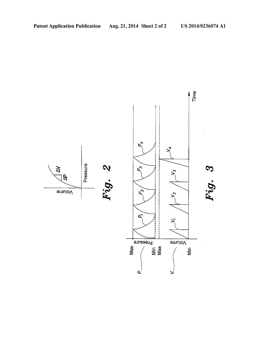 pneumatic device for treating intussusception - diagram, schematic, and  image 03