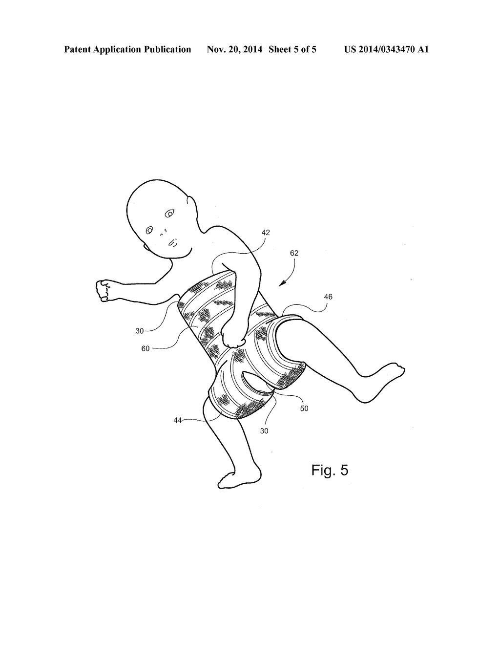 hip spica cast and undergarment for use with hip spica cast - diagram,  schematic, and image 06