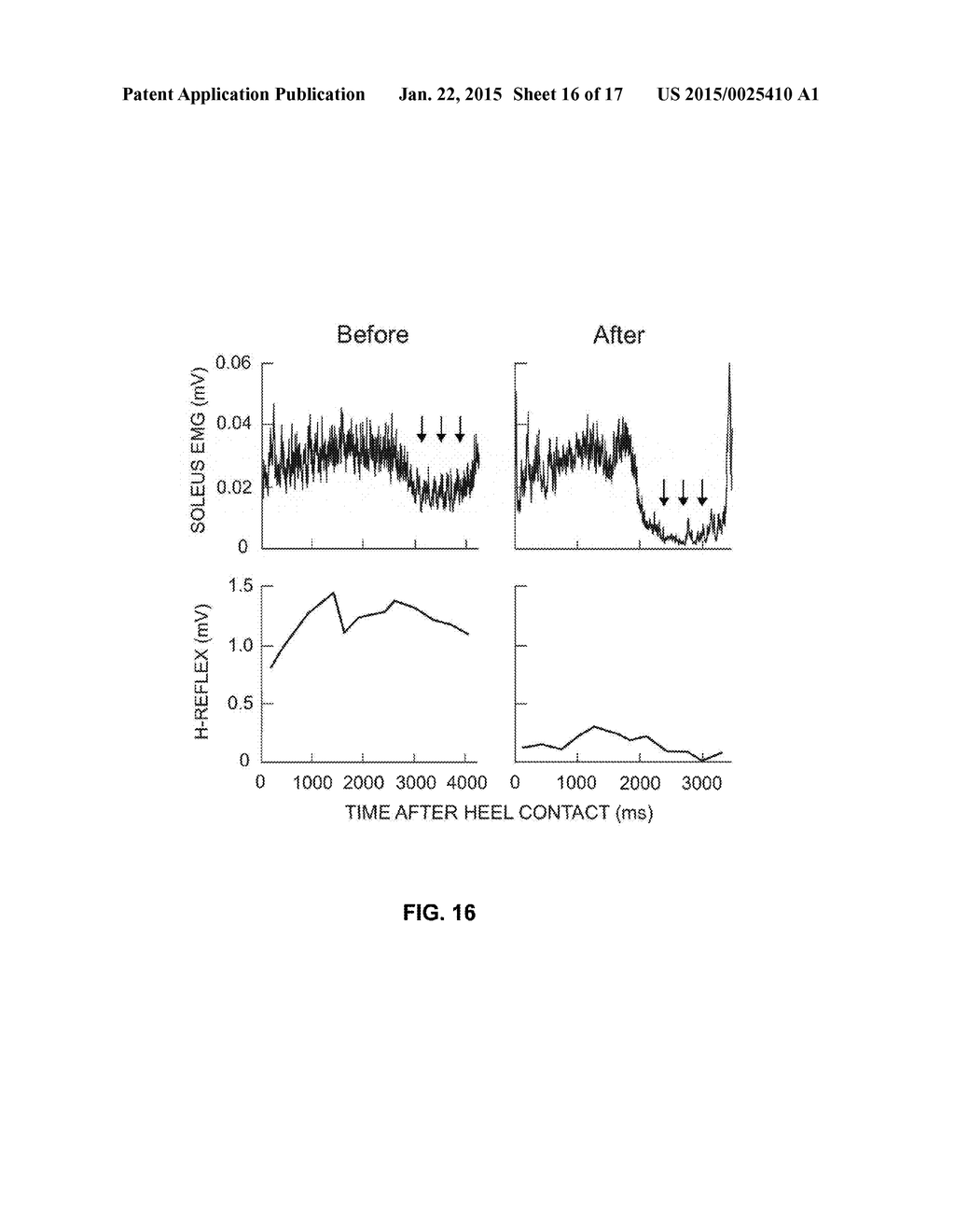 Method And Device To Restore Andor Improve Nervous System Functions