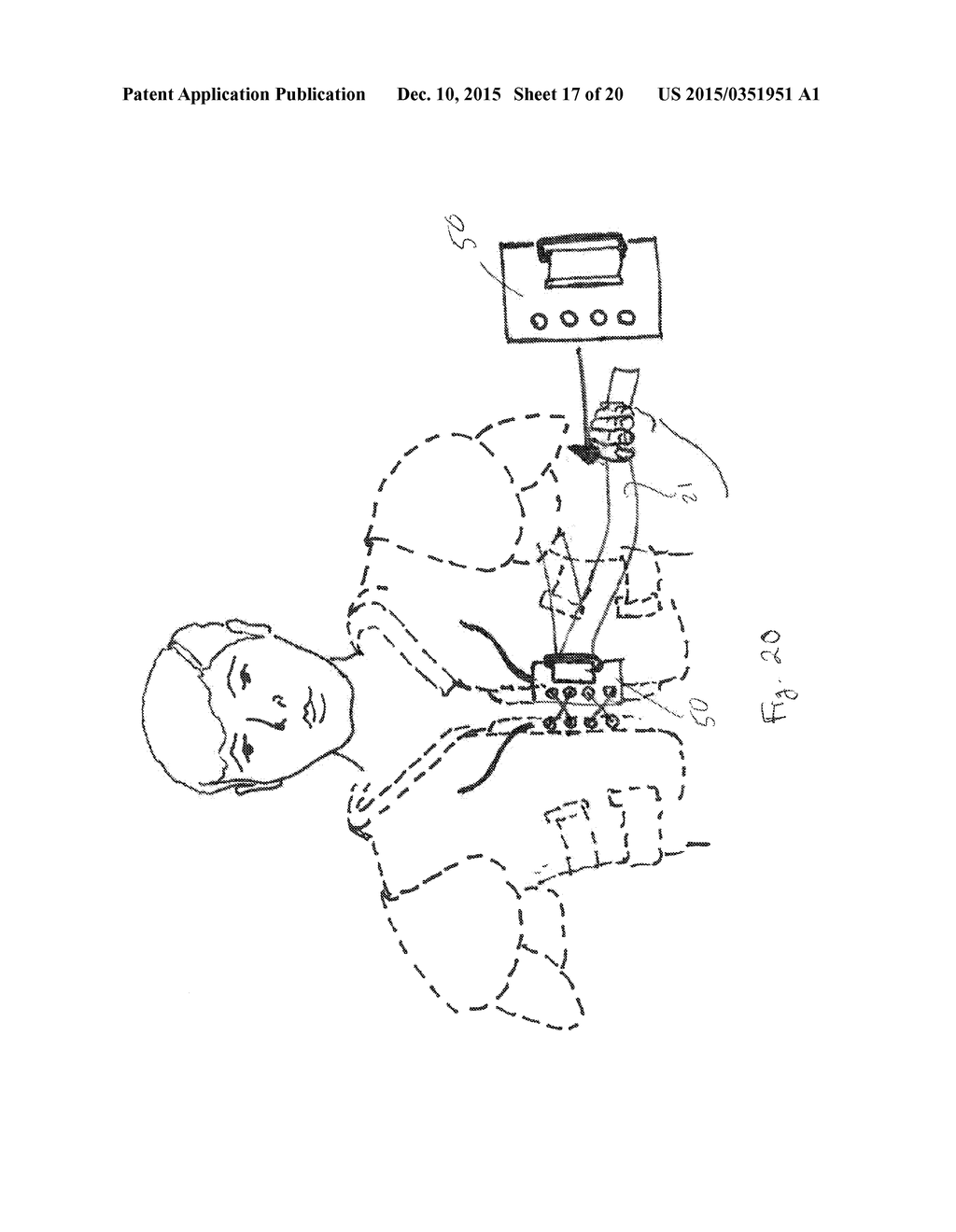SHOULDER STABILIZATION APPARATUS AND METHODS - diagram, schematic, and image 18