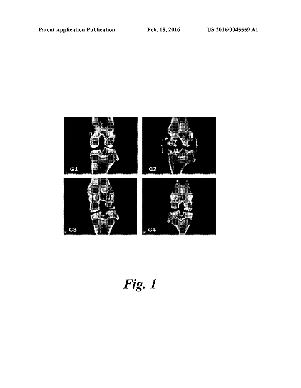 COMPOSITIONS AND METHODS FOR MANAGING OR IMPROVING BONE DISORDERS,     CARTILAGE DISORDERS, OR BOTH - diagram, schematic, and image 02