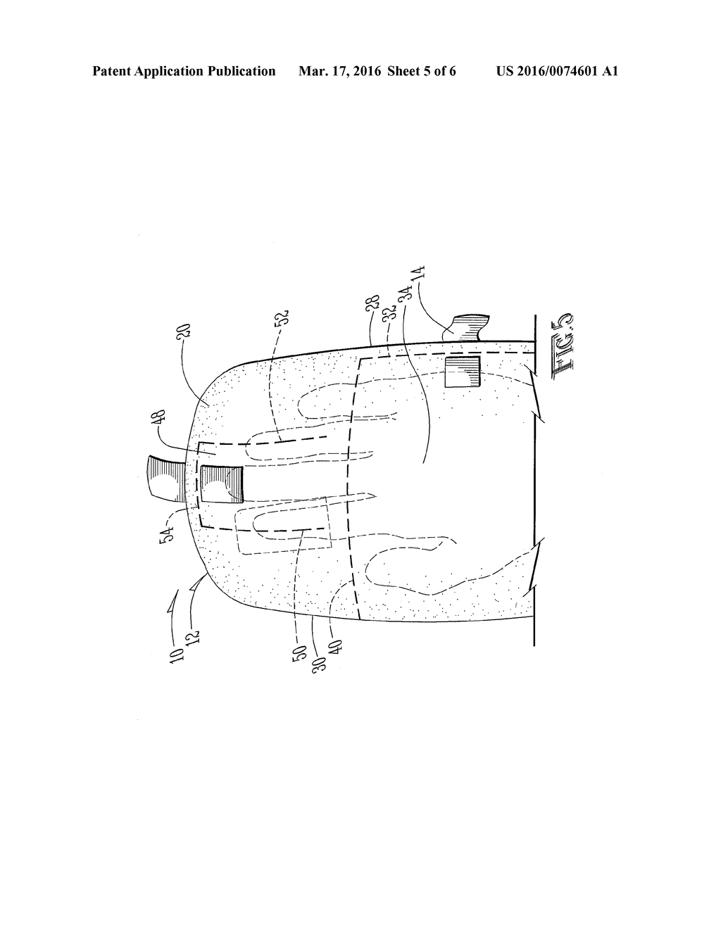 20160074601_06 medical hand and arm protection apparatus and method of protection