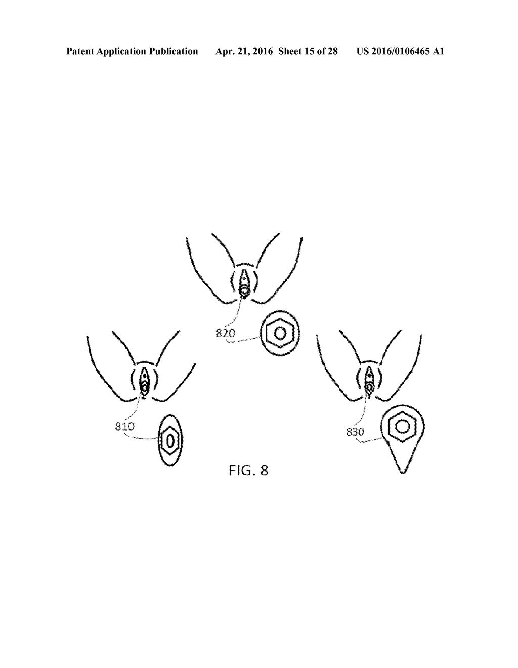 Apparatus For Repositioning The Vagina Cervix Uterus And Pelvic
